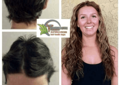 curly-hair-extensions-hairdoctk-cancer-survivor-extensions