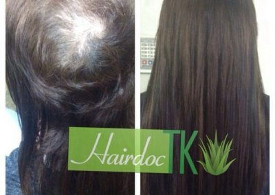 trichotillomania-hair-loss-extensions-hairdoctk-