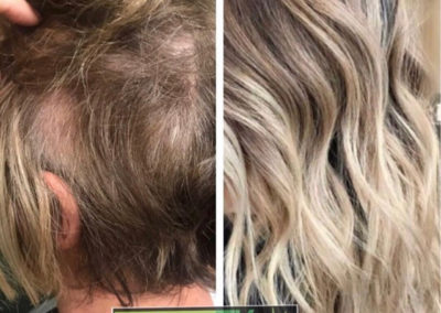 trichotillomania-hair-loss-extensions-thinning-hair-scottsdale-salon