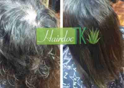trichotillomania-hair-loss-hair-extensions-scottsdale-hair-expert